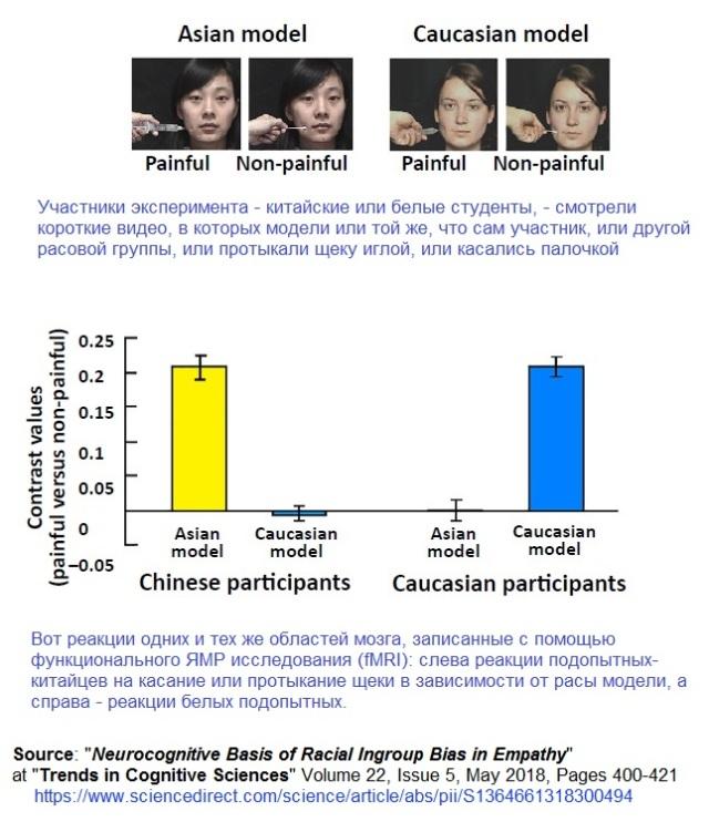 Neurocognitive Basis of Racial Ingroup Bias in Empathy